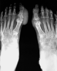Gambaran Rontgen Gout