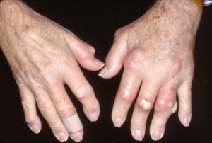 Gout Arthritis pada Jari Tangan